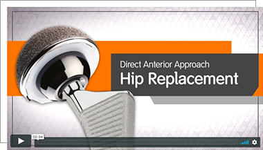 Direct Anterior Total Hip Replacement